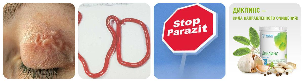 Очищаем организм от паразитов народными средствами в домашних условиях 577